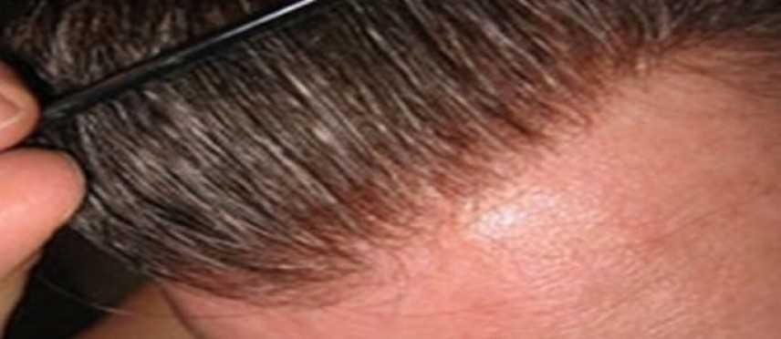 Protesi per capelli: la risposta alla calvizie discreta e non chirurgica