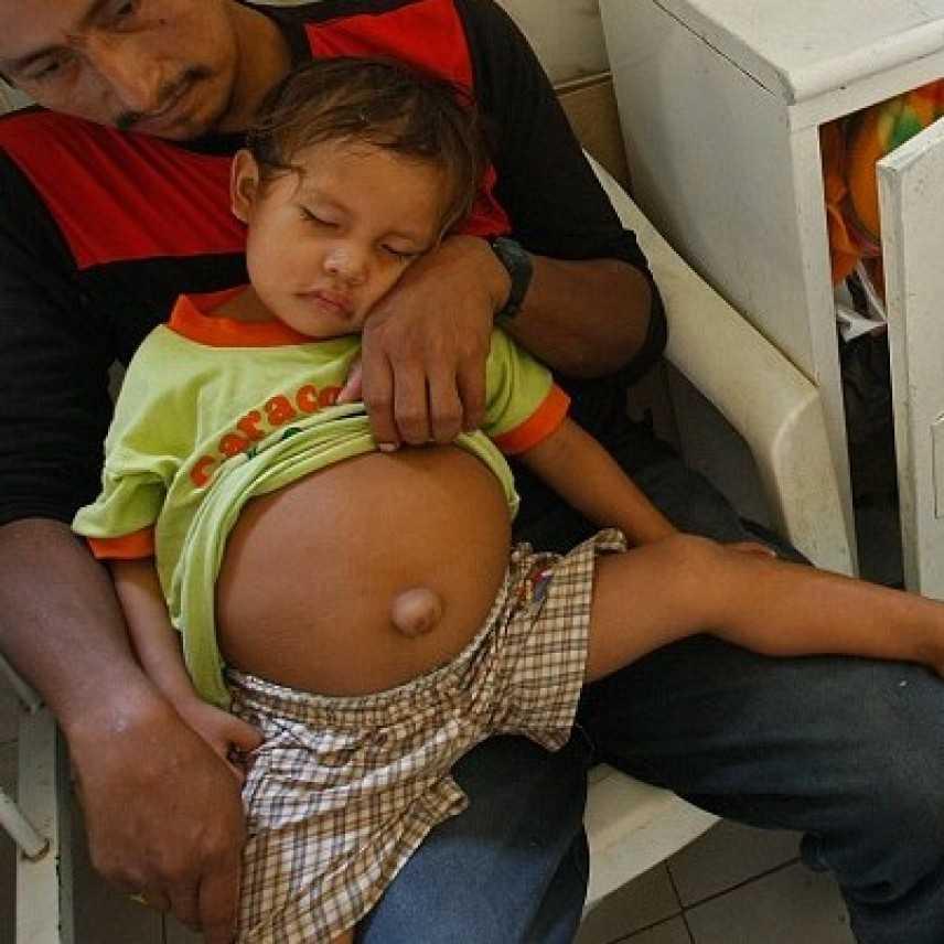 Un bambino ha il fratellino in pancia! Viene operato